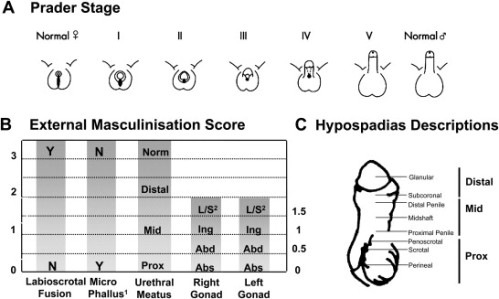 Scoring External Genitalia. A. The external genitalia can be objectively scored using the Prader staging system which provides an overall score for the appearance of the external genitalia. B. Alternatively, each individual feature of the genitalia (phallus size, labioscrotal fusion, site of the gonads and location of urethral meatus) can be individually scored to obtain the External Masculinisation Score (EMS). Adapted from Ahmed et al., BJU Int. 2000;85:120–4. (Source)